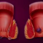 De ce apar hemoroizii