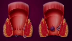 Cauzele aparitiei hemoroizilor