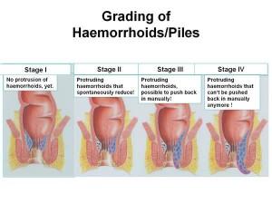 Grade de hemoroizi