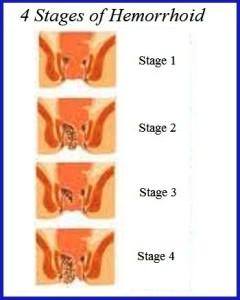 Grade hemoroizi