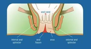 Diferenta dintre fisuri anale si hemoroizi