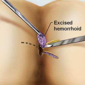 Operatia de hemoroizi