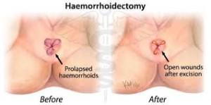 inainte si dupa operatia de hemoroizi