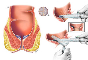 operatia de hmeoroizi